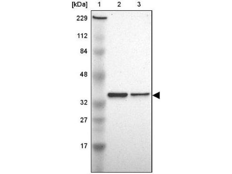 Western Blotting (WB) image for anti-COP9 Constitutive Photomorphogenic Homolog Subunit 5 (Arabidopsis) (COPS5) antibody (ABIN4327830)