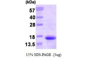 Image no. 1 for Tachykinin 3 (TAC3) (AA 17-121) protein (His tag) (ABIN667125)