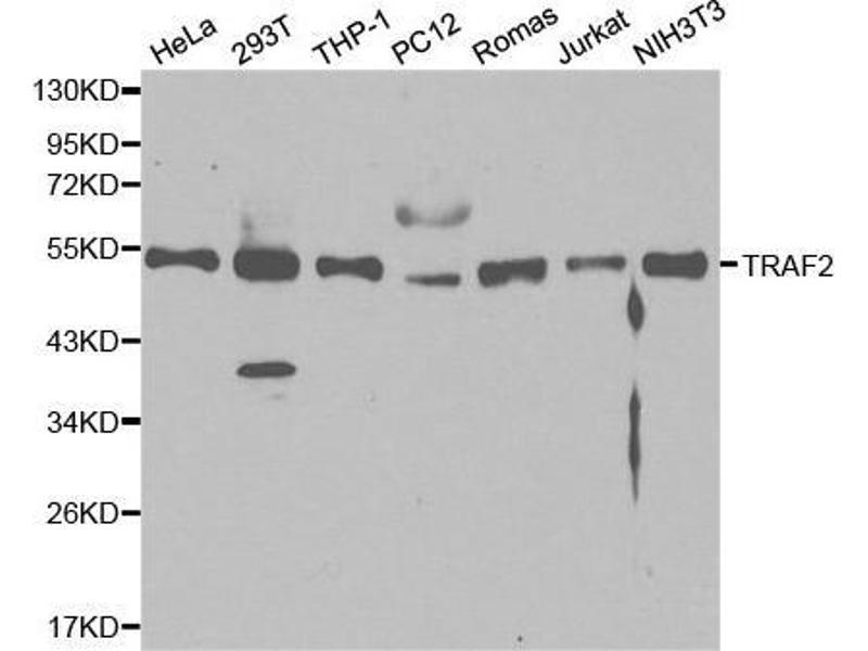 Western Blotting (WB) image for anti-TRAF2 antibody (TNF Receptor-Associated Factor 2) (ABIN3021165)
