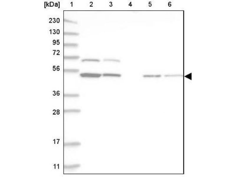 Western Blotting (WB) image for anti-RBM34 抗体 (RNA Binding Motif Protein 34) (ABIN4349617)