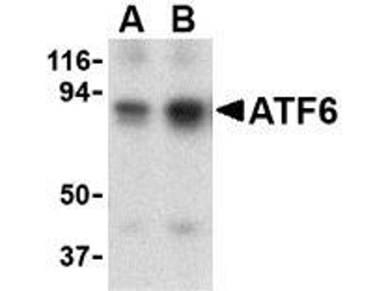 Western Blotting (WB) image for anti-ATF6 antibody (Activating Transcription Factor 6) (N-Term) (ABIN499353)