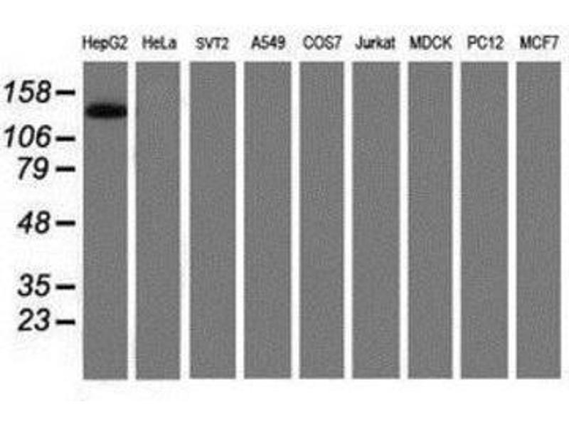 Western Blotting (WB) image for anti-PTK7 Protein tyrosine Kinase 7 (PTK7) antibody (ABIN4348549)