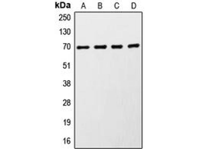 Western Blotting (WB) image for anti-Ribosomal Protein S6 Kinase, 70kDa, Polypeptide 1 (RPS6KB1) (C-Term) antibody (ABIN2705217)
