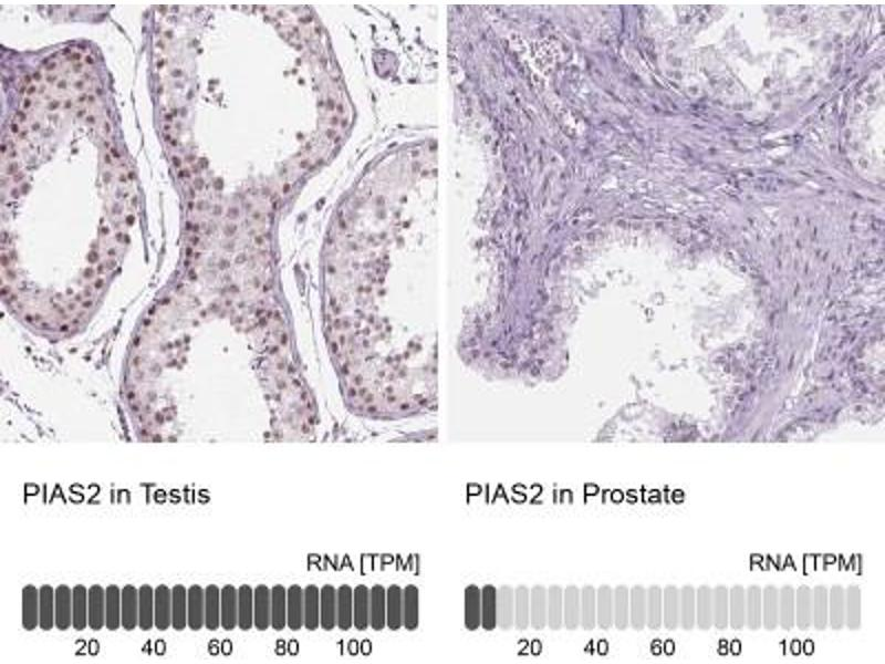 Immunohistochemistry (Paraffin-embedded Sections) (IHC (p)) image for anti-Protein Inhibitor of Activated STAT, 2 (PIAS2) antibody (ABIN4345425)