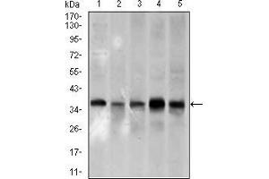 Image no. 3 for anti-Proliferating Cell Nuclear Antigen (PCNA) (AA 53-196) antibody (ABIN1724760)