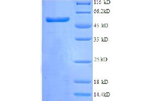 Image no. 1 for Tripartite Motif Containing 28 (TRIM28) (AA 22-291), (partial) protein (GST tag) (ABIN5712399)