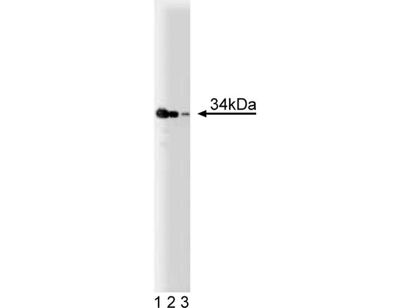 Western Blotting (WB) image for anti-TRADD antibody (TNFRSF1A-Associated Via Death Domain) (AA 163-312) (ABIN968046)