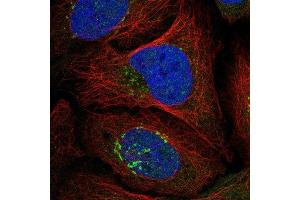 Immunofluorescence (IF) image for anti-Ras Protein-Specific Guanine Nucleotide-Releasing Factor 1 (RASGRF1) antibody (ABIN4349416)