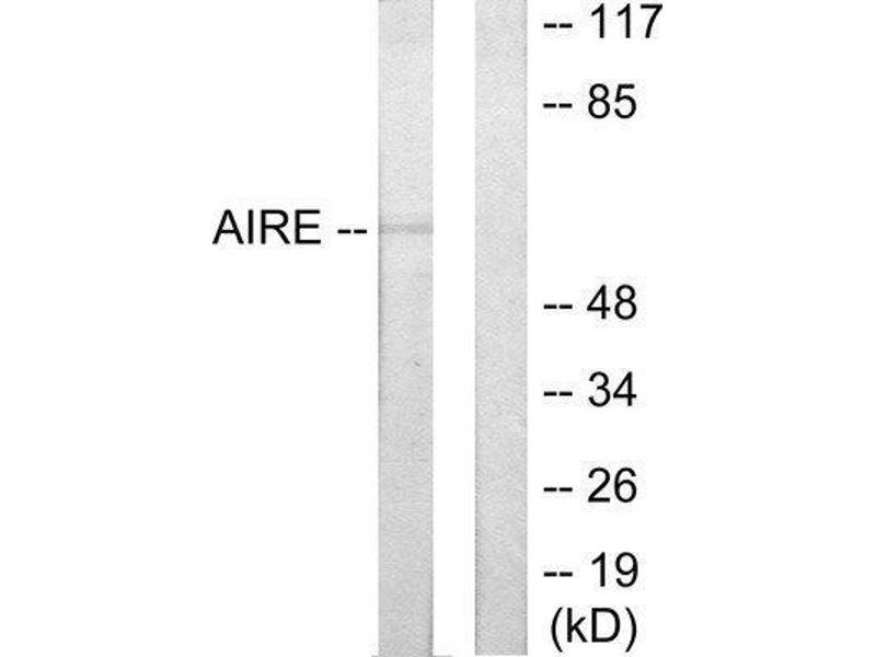 Western Blotting (WB) image for anti-Autoimmune Regulator (AIRE) (Internal Region) antibody (ABIN1848982)
