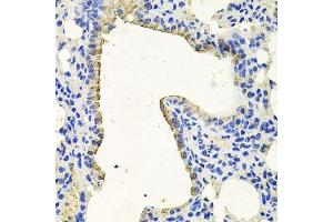Image no. 5 for anti-Protein Kinase N1 (PKN1) antibody (ABIN1682293)