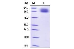 Image no. 1 for Interleukin 7 Receptor (IL7R) (AA 21-236) (Active) protein (Fc Tag) (ABIN2181401)