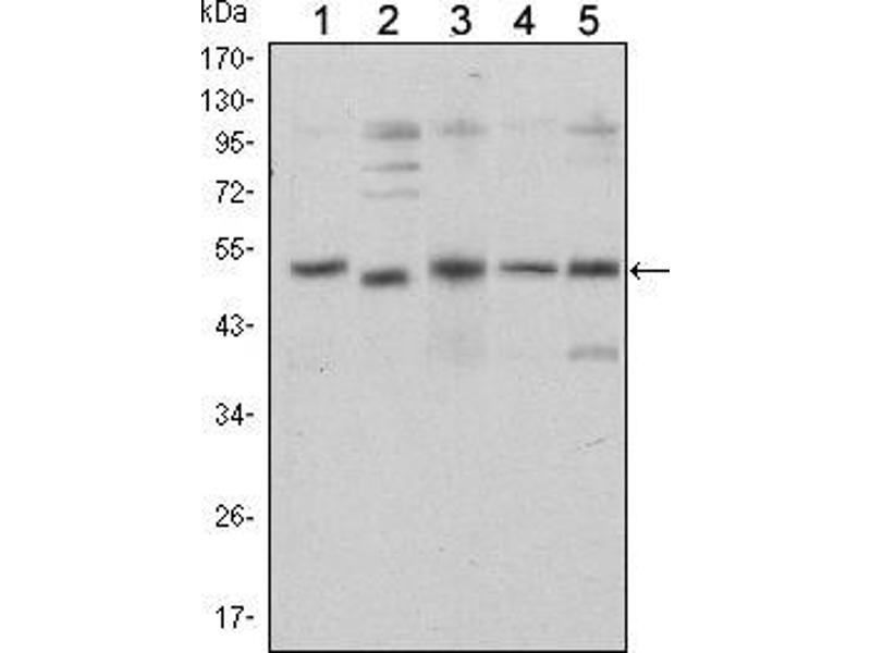 Western Blotting (WB) image for anti-SMAD, Mothers Against DPP Homolog 5 (SMAD5) antibody (ABIN969404)