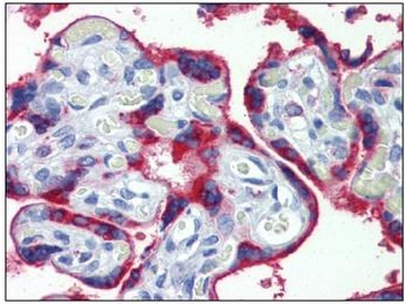 Immunohistochemistry (IHC) image for anti-EPH Receptor B4 antibody (EPHB4) (Extracellular Domain) (ABIN614445)
