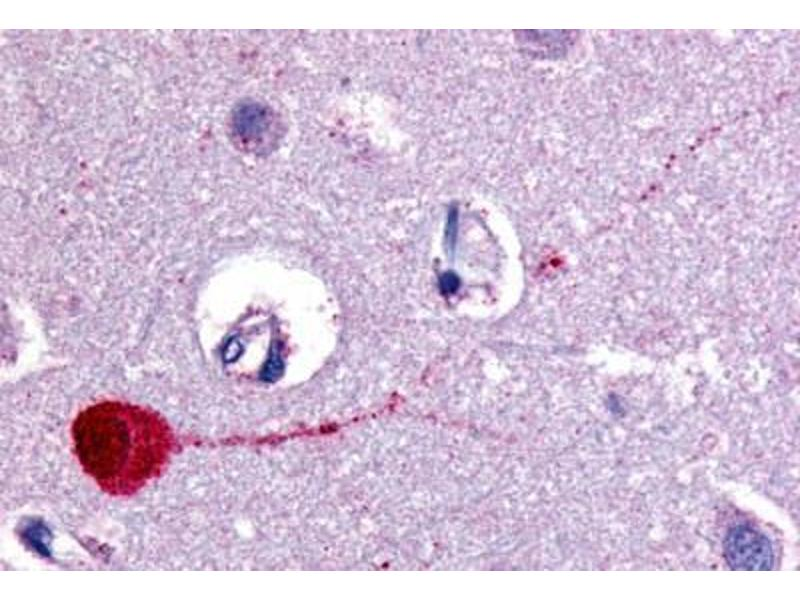 Immunohistochemistry (Paraffin-embedded Sections) (IHC (p)) image for anti-Cholinergic Receptor, Muscarinic 3 (CHRM3) (Cytoplasmic Domain) antibody (ABIN213348)