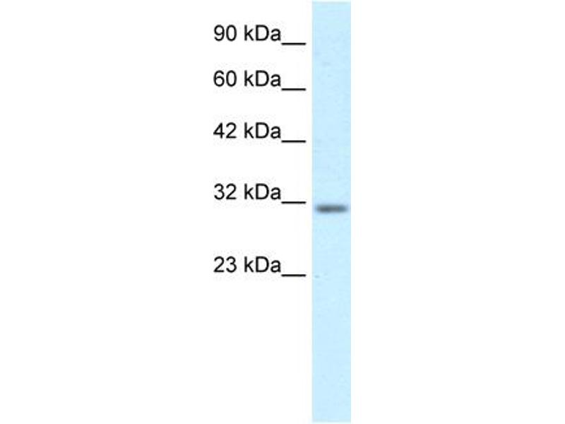 Western Blotting (WB) image for anti-BARX Homeobox 1 (BARX1) (Middle Region) antibody (ABIN2777664)