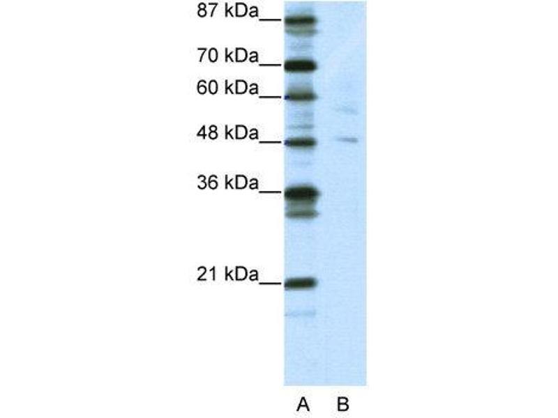 Western Blotting (WB) image for anti-Pleiomorphic Adenoma Gene-Like 1 (PLAGL1) (N-Term) antibody (ABIN2780800)