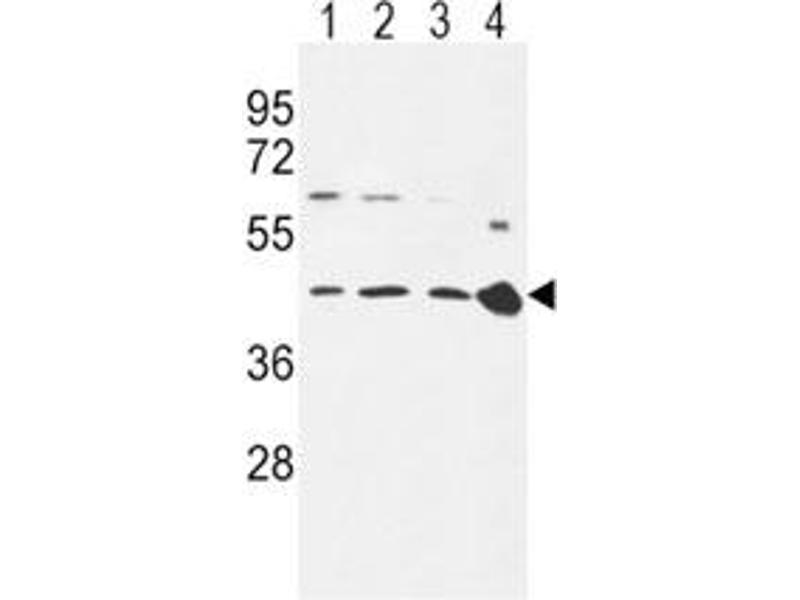 Western Blotting (WB) image for anti-Chemokine (C-C Motif) Receptor 7 (CCR7) (AA 11-37) antibody (ABIN3030497)