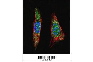 Image no. 3 for anti-SMT3 Suppressor of Mif Two 3 Homolog 1 (S. Cerevisiae) (SUMO1) (AA 1-30), (N-Term) antibody (ABIN1882136)