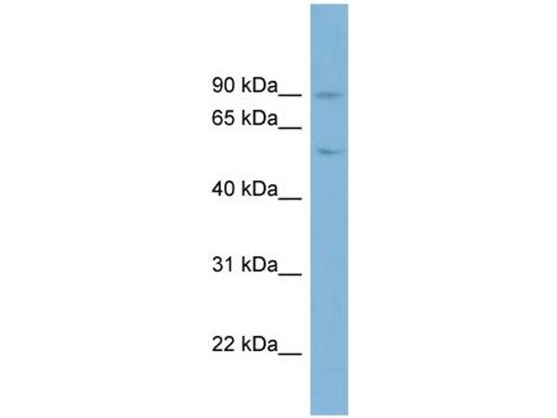 Western Blotting (WB) image for anti-Plasminogen (PLG) (Middle Region) antibody (ABIN2784539)