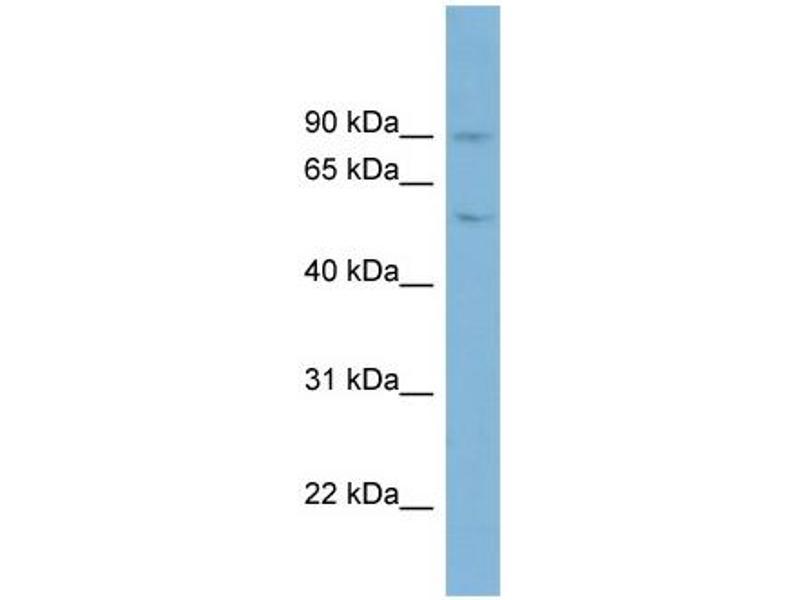 Western Blotting (WB) image for anti-Plasminogen (PLG) (Middle Region) antibody (ABIN2784539)