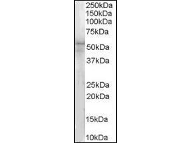 Western Blotting (WB) image for anti-IRAK4 antibody (Interleukin-1 Receptor-Associated Kinase 4) (N-Term) (ABIN615818)