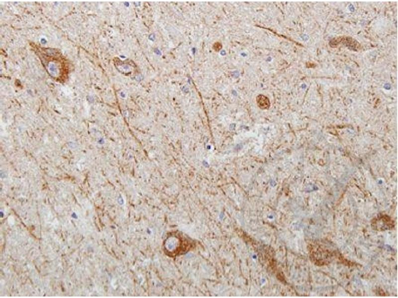 Immunohistochemistry (IHC) image for anti-WNT2 antibody (Wingless-Type MMTV Integration Site Family Member 2) (AA 240-290) (ABIN762896)
