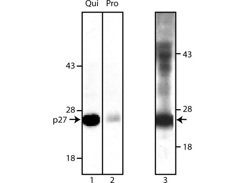 Western Blotting (WB) image for anti-Cyclin-Dependent Kinase Inhibitor 1B (p27, Kip1) (CDKN1B) antibody (ABIN967391)