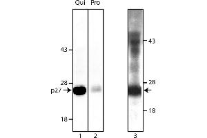 Western Blotting (WB) image for anti-CDKN1B antibody (Cyclin-Dependent Kinase Inhibitor 1B (p27, Kip1)) (ABIN967391)