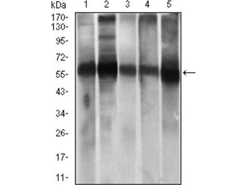 Image no. 5 for anti-Aldehyde Dehydrogenase 2 Family (Mitochondrial) (ALDH2) (AA 317-517) antibody (ABIN1846467)