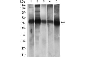 Image no. 8 for anti-Aldehyde Dehydrogenase 2 Family (Mitochondrial) (ALDH2) (AA 317-517) antibody (ABIN1846467)