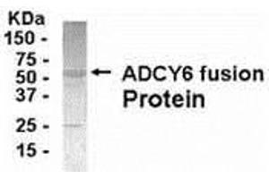 Image no. 1 for anti-Adenylate Cyclase 6 (ADCY6) (AA 1-121) antibody (ABIN2467944)
