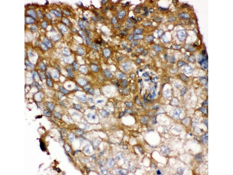 Immunohistochemistry (Paraffin-embedded Sections) (IHC (p)) image for anti-Fibroblast Growth Factor Receptor 4 (FGFR4) (AA 22-206) antibody (ABIN3042391)