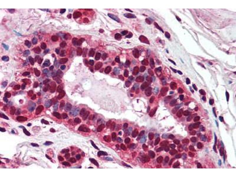 Immunohistochemistry (Paraffin-embedded Sections) (IHC (p)) image for anti-PMS2 Postmeiotic Segregation Increased 2 (S. Cerevisiae) (PMS2) (AA 623-639) antibody (ABIN241578)