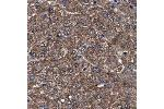 Immunohistochemistry (Paraffin-embedded Sections) (IHC (p)) image for anti-Mitogen-Activated Protein Kinase Kinase Kinase 2 (MAP3K2) antibody (ABIN4333538)