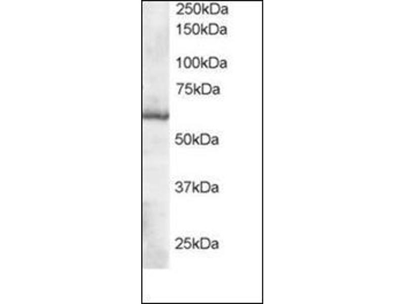 Western Blotting (WB) image for anti-Thioredoxin Reductase 1 (TXNRD1) (C-Term) antibody (ABIN615409)