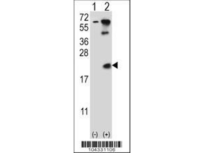 Western Blotting (WB) image for anti-UBE2B antibody (Ubiquitin-Conjugating Enzyme E2B) (AA 117-146) (ABIN388848)
