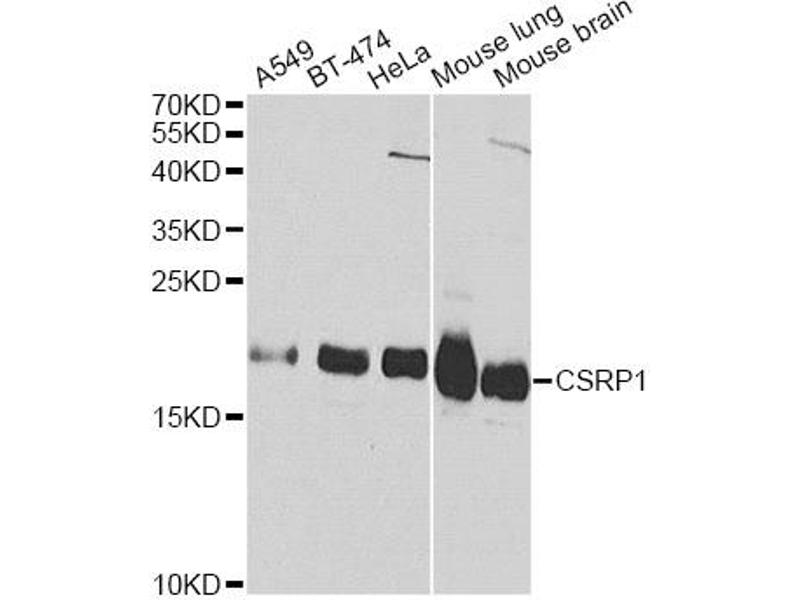 Image no. 1 for anti-Cysteine and Glycine-Rich Protein 1 (CSRP1) antibody (ABIN6567013)