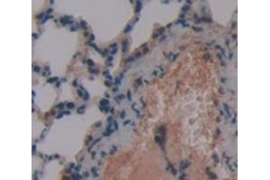 Image no. 2 for anti-Surfactant Protein C (SFTPC) (AA 94-193) antibody (ABIN1860605)