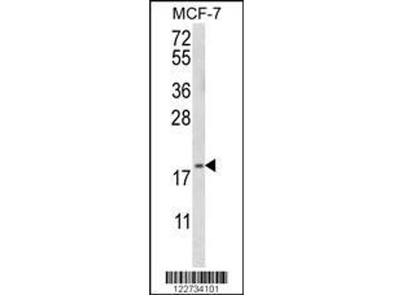 Western Blotting (WB) image for anti-GABA(A) Receptor-Associated Protein-Like 2 (GABARAPL2) antibody (ABIN650659)