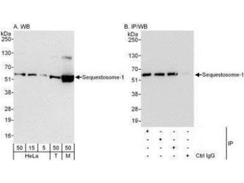 Western Blotting (WB) image for anti-Sequestosome 1 (SQSTM1) (AA 425-440) antibody (ABIN4343150)
