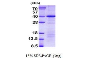 Image no. 1 for Death Effector Domain Containing (DEDD) protein (His tag) (ABIN1098762)