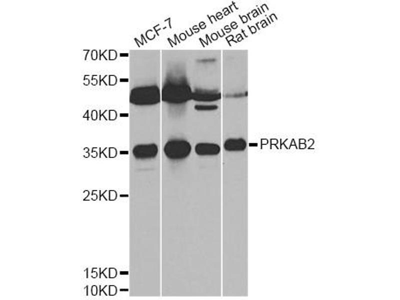 Western Blotting (WB) image for anti-Protein Kinase, AMP-Activated, beta 2 Non-Catalytic Subunit (PRKAB2) antibody (ABIN6291758)