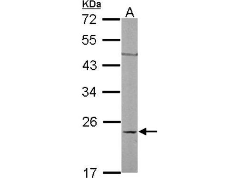 Western Blotting (WB) image for anti-Ras Homolog Gene Family, Member C (RHOC) (Center) antibody (ABIN4350398)