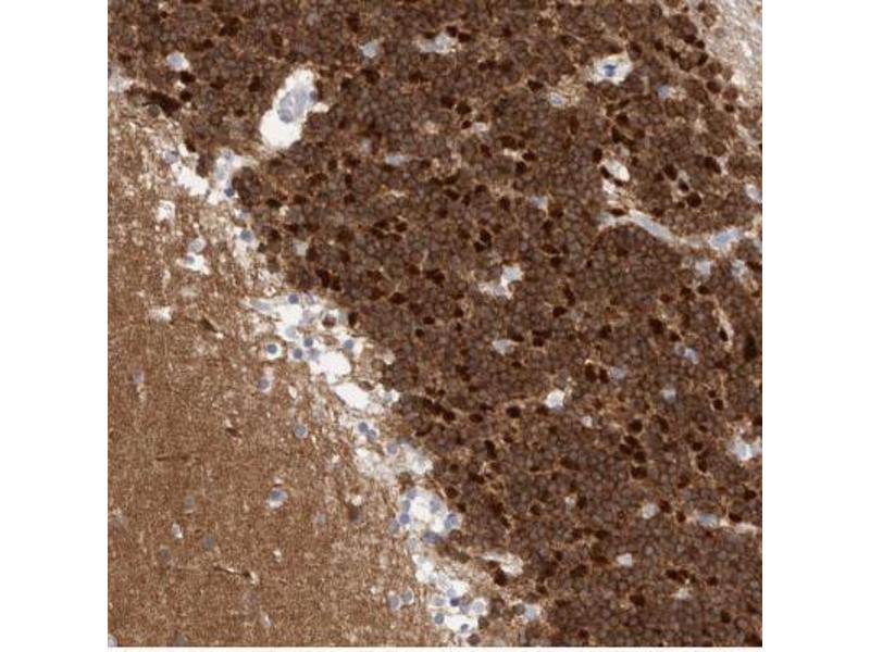 Immunohistochemistry (Paraffin-embedded Sections) (IHC (p)) image for anti-Calcium/calmodulin-Dependent Protein Kinase (CaM Kinase) II beta (CAMK2B) antibody (ABIN4287584)
