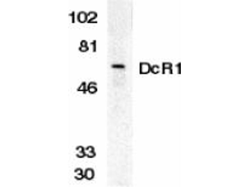 image for anti-Tumor Necrosis Factor Receptor Superfamily, Member 10c, Decoy Without An Intracellular Domain (TNFRSF10C) (Extracellular Domain) antibody (ABIN203554)