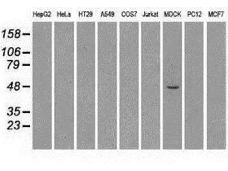 Western Blotting (WB) image for anti-MAP2K4 antibody (Mitogen-Activated Protein Kinase Kinase 4) (ABIN4334806)