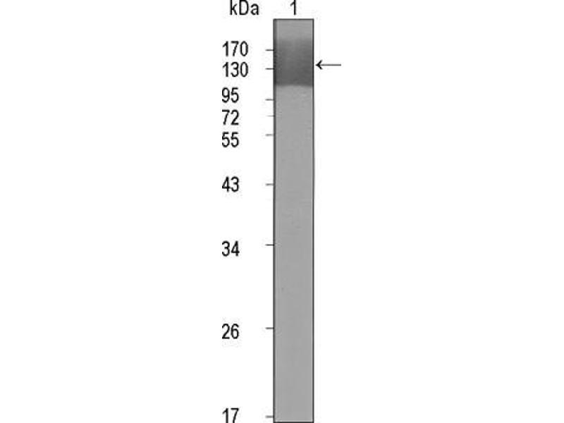 Image no. 3 for anti-Kinase insert Domain Receptor (A Type III Receptor tyrosine Kinase) (KDR) (AA 20-764) antibody (ABIN969231)
