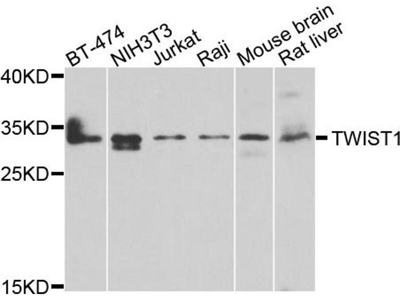 Western Blotting (WB) image for anti-Twist Homolog 1 (Drosophila) (TWIST1) antibody (ABIN4905524)