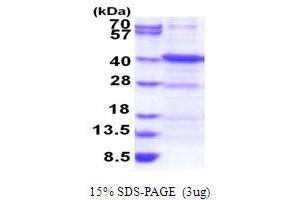Image no. 1 for Ankyrin Repeat, Family A (RFXANK-Like), 2 (ANKRA2) (AA 1-313) protein (His tag) (ABIN6387472)