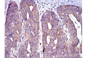 Immunohistochemistry (IHC) image for anti-CBL antibody (Cas-Br-M (Murine) Ecotropic Retroviral Transforming Sequence) (ABIN968993)